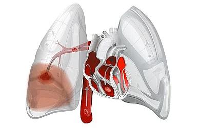 Симптом матового стекла при COVID-19